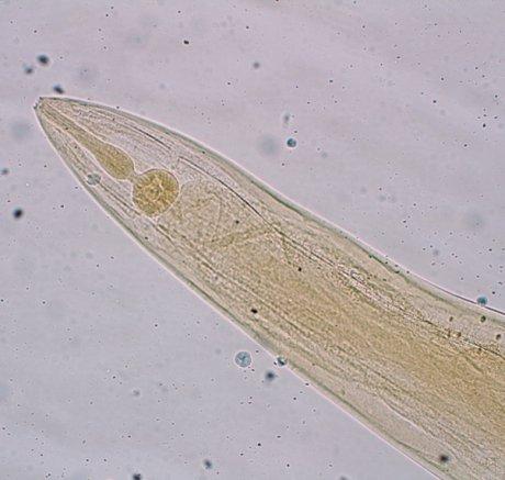 Diagnostik und Therapie des Madenwurmbefalls