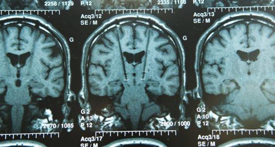 MRT eines 30-Jährigen mit implantierten Elektroden für die tiefe Hirnstimulation THS (Krankenhaus Grenoble Universitätskrankenhaus - Michallon Krankenhaus - Abteilung für Neurologie) /RFBSIP stock.adobe.com