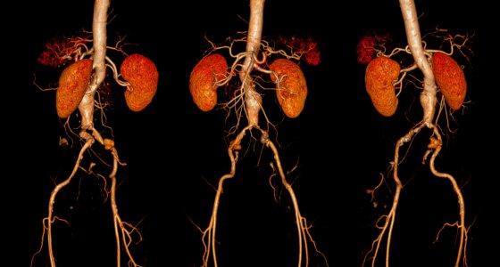 Bei einem Aortenaneurysma kommt es zu einer Spindel- oder sackförmige Aufweitung eines Aortensegments. /samunella, stock.adobe.com