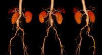 Aortenaneurysma: FDA warnt erneut vor Endoleckagen aus Gef��prothesen