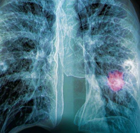 Evidenzbasierte Nachsorge bei Krebserkrankungen im...