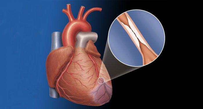 Gene beeinflussen Verlauf der Aortenklappenstenose bei Männern und Frauen