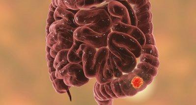 Künstliche Intelligenz klassifiziert Darmkrebs anhand von Infrarotaufnahmen