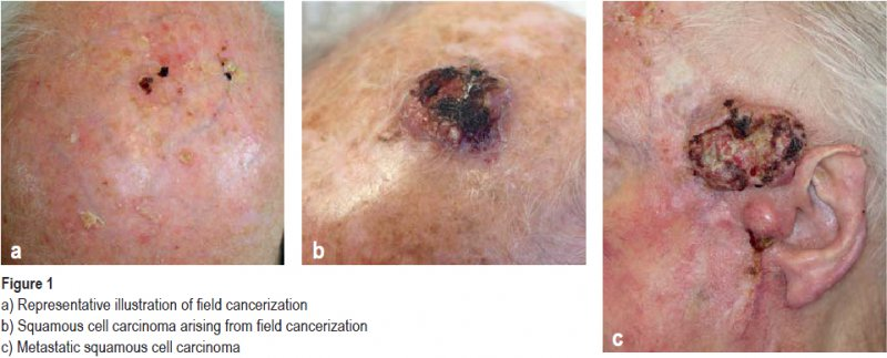a) Representative illustration of field cancerization, b) Squamous cell carcinoma arising from field cancerization, c) Metastatic squamous cell carcinoma