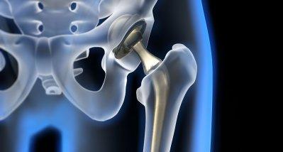 Metalle aus Endoprothesen lagern sich in Knochen und Knochenmark ab
