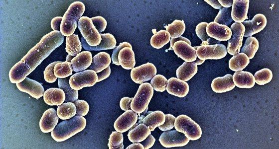 Bakterien Listeria monocytogenes Erreger in einer Mikroaufnahme Vergrößerung 20.000:1 Rasterelektronenmikroskop REM-Color. /Dr.Gary Gaugler/OKAPIA