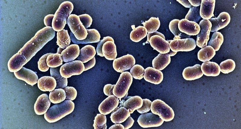 Listeriose: Sigma1-Ausbruch begann bereits 2014