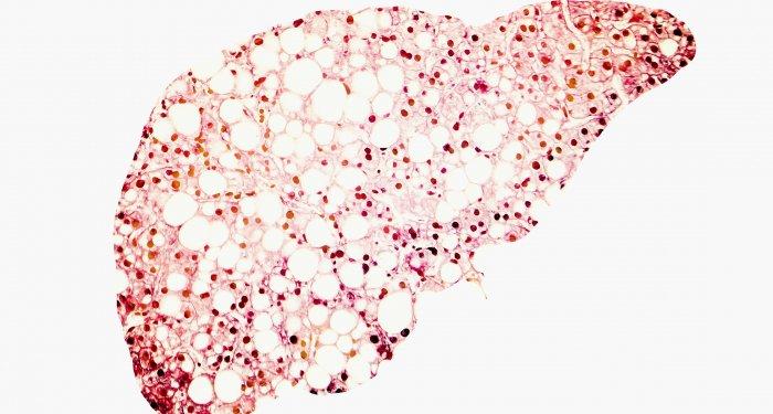 Tesamorelin vermindert nichtalkoholische Steatohepatitis bei HIV-Patienten