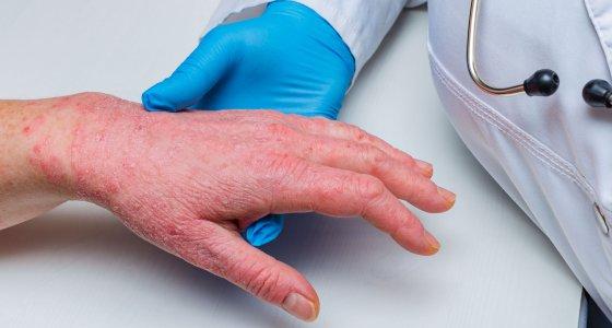 Arzt untersucht die Hand eines Patienten mit Neurodermitis. /Iri-s, stock.adobe.com