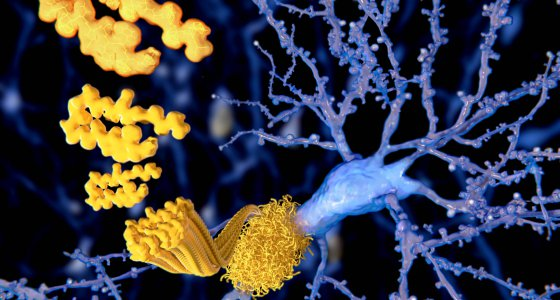 Amyloid-Peptide aggregieren zu Amyloid-Plaques, die zusammen mit Tau zur Degenerarion der Neuronen beitragen. /Juan Gärtner, stock.adobe.com