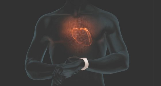 Die Apple Smart-Watch (4. Generation) erfasst Unregelmäßigkeiten, die auf ein Vorhofflimmern hinweisen. Über eine App erhalten Nutzer einen Hinweis für eventuelle Herzrhythmusstörungen. /Apple