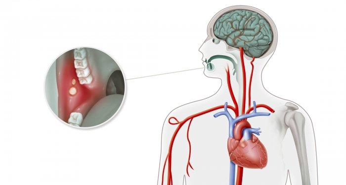 Morbus Behçet: Psoriasis-Medikament Apremilast fördert Abheilung von Aphthen