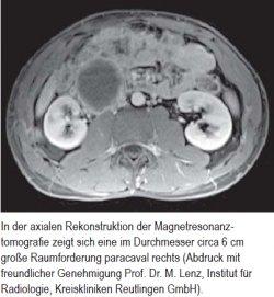 In der axialen Rekonstruktion der Magnetresonanz - tomografie zeigt sich eine im Durchmesser circa 6 cm große Raumforderung paracaval rechts (Abdruck mit freundlicher Genehmigung Prof. Dr. M. Lenz, Institut für Radiologie, Kreiskliniken Reutlingen GmbH).