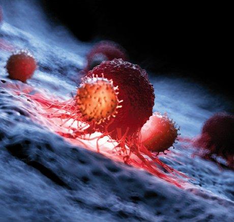 CAR-T-Zellen
