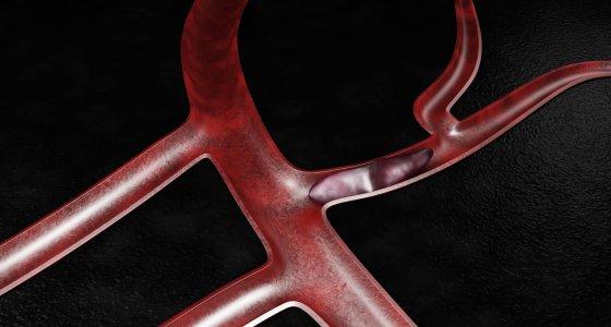 3D-Darstellung einer Lungenthromboembolie. /tussik stock.adobe.com