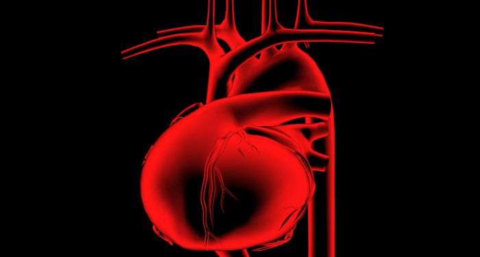 Irbesartan vermindert Aortendilatation bei Marfan-Syndrom