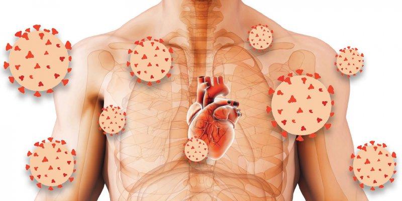 Ob das SARS-CoV-2-Virus die Herzmuskelzellen direkt schädigt oder indirekt über die durch Infektion ausgelösten entzündlichen Prozesse und Immunreaktionen, ist noch nicht abschließend geklärt. Fotos: yodiyim/iStock; DebahutiBhattacharya/stock.adobe.com [m]