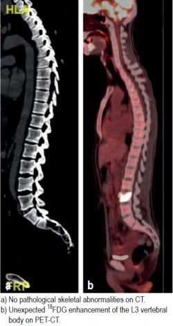 a) No pathological skeletal abnormalities on CT.; b) Unexpected 18FDG enhancement of the L3 vertebral body on PET-CT.