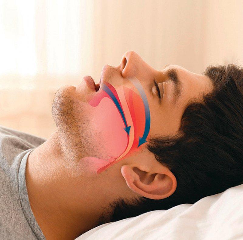Bei obstruktiver Schlafapnoe kann auch eine Kunststoffschiene im Mund helfen. Foto: mauritius images/Pixel-shot Alamy