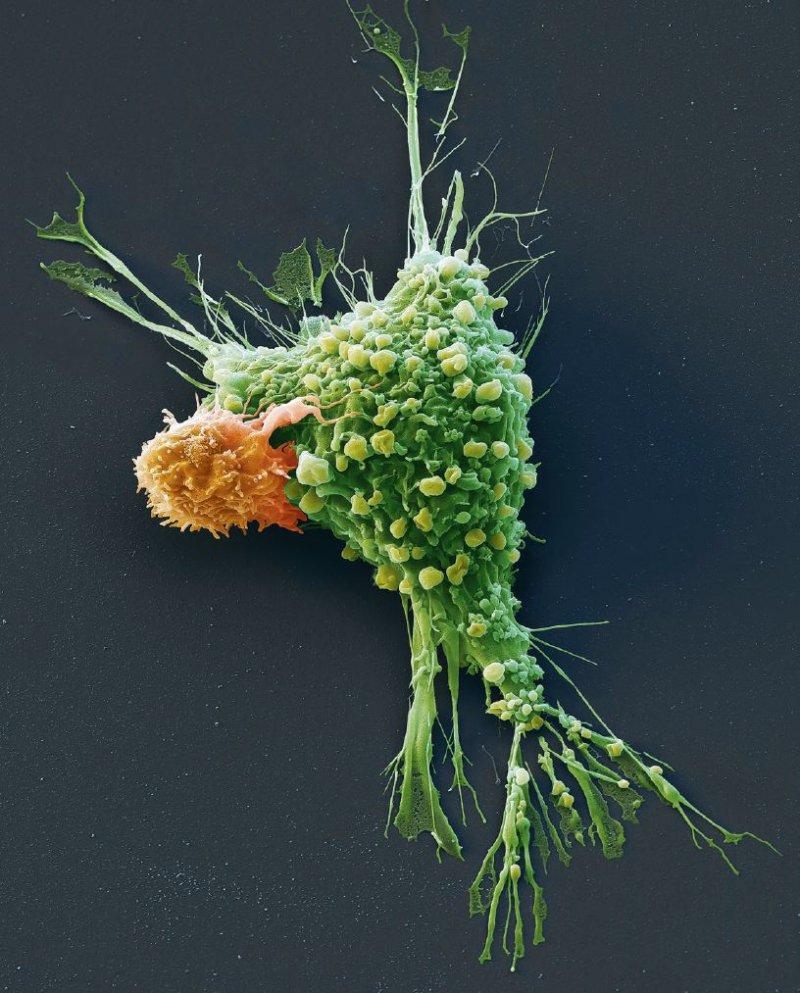 Durch die Modifikation patienteneigener Immunzellen (hier CAR-T-Zellen) werden bereits Therapieerfolge in der Onkologie erzielt. Foto: Science Photo Library/EYE OF SCIENCE