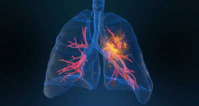 #Metastasiertes NSCLC: Fast jeder dritte Patient nach 5 Jahren noch am Leben
