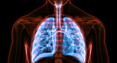 COVID-19: Charakteristische Sequenz der Lungenschädigung bei letalen Verläufen