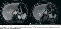 a) Kontrastmittel(KM)-Enhancement in der Aortenwand (grüner Pfeil), hochgradige Abgangsstenose des Truncus coeliacus durch periaortale Weichteilvermehrung (roter Pfeil); b) Subtotal rückläufiges KM-Enhancement der Aortenwand (grüner Pfeil), sowie eine deutlich regrediente periaortale Manschette mit nun besserer Perfusion des Truncus coeliacus (blauer Pfeil)