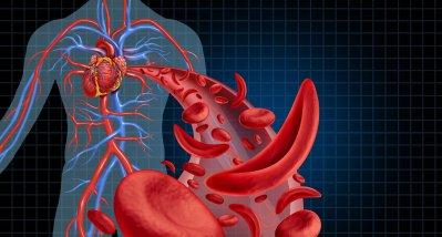 Sichelzellanämie: Dosiseskalierung verbessert Ergebnisse der Standardtherapie deutlich