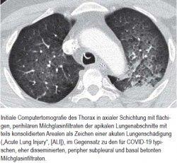 """Initiale Computertomografie des Thorax in axialer Schichtung mit flächigen, perihilären Milchglasinfiltraten der apikalen Lungenabschnitte mit teils konsolidierten Arealen als Zeichen einer akuten Lungenschädigung (""""Acute Lung Injury"""", [ALI]), im Gegensatz zu den für COVID-19 typischen, eher disseminierten, peripher subpleural und basal betonten Milchglasinfiltraten."""