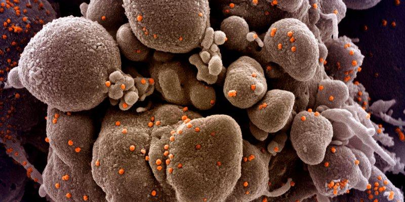 SARS-CoV-2: Wie gefährlich ist die Virusvariante G614?