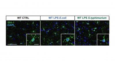 Sepsis könnte Gehirn langfristig schädigen