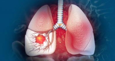 NSCLC: Immuntherapien bewegen sich in Richtung Neoadjuvanz