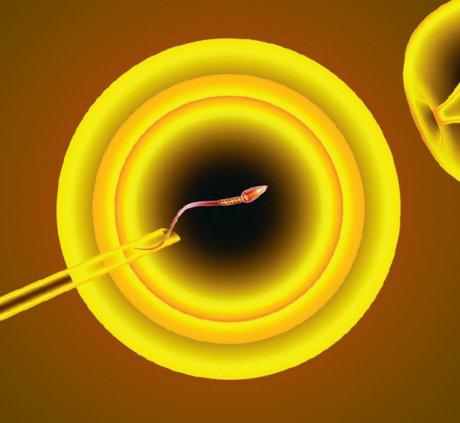 Embryonenschutzgesetz