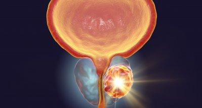 Prostatakarzinom: Antiandrogen verlängert Leben nach Versagen der Androgendeprivation