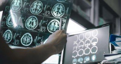 Mobiler Magnetresonanztomograf hilft Neurologen am Krankenbett