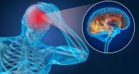 Schädel-Hirn-Trauma: Low-Level-Lichttherapie erzielt Veränderungen in der Magnetresonanztomografie