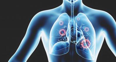 SARS-CoV-2: Studie schätzt den Anteil der asymptomatischen Erkrankungen neu ein
