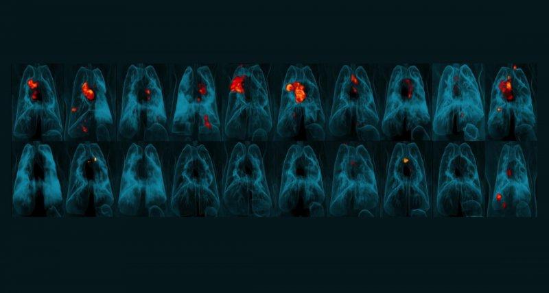3D-PET-CT-Scans von Affenlungen, die eine Entzündung (rot und gelb) durch eine TB-Infektion zeigen. Die obere Reihe wurde wie üblich mit einer Injektion in die Haut geimpft. Die untere Reihe erhielt den Impfstoff intravenös. /JoAnne Flynn, Alexander White, Pauline Maiello, Mario Roederer