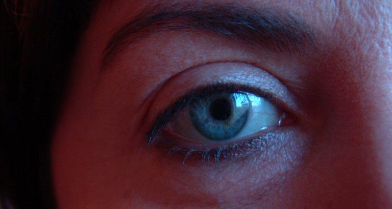 Teprotumumab bessert Exophthalmus bei endokriner Orbitopathie