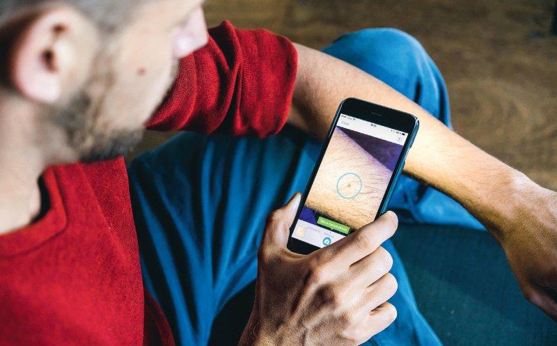 Hautveränderungen per Handykamera an den Arzt: Entwicklungen wie diese sollen bald im Versorgungsalltag sein. Foto: Your Photo Today