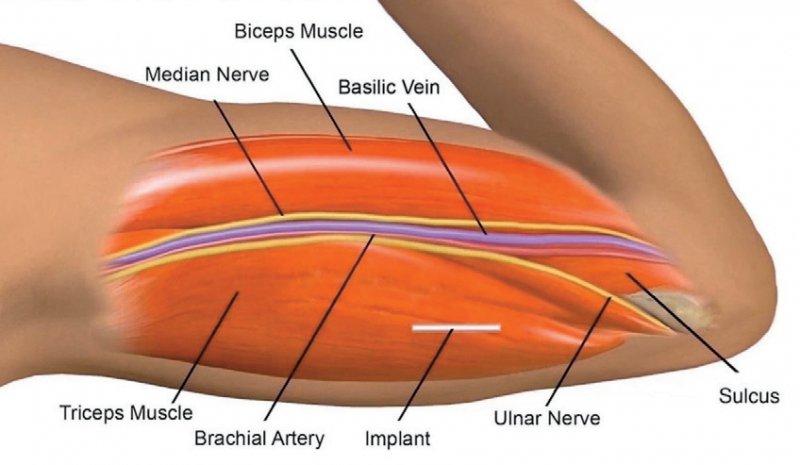 Wichtigster Risikofaktor für die Wanderung des Implantats ist eine zu tiefe Einlage. Foto: Screenshot Video, www.implanonnxtvideos.eu