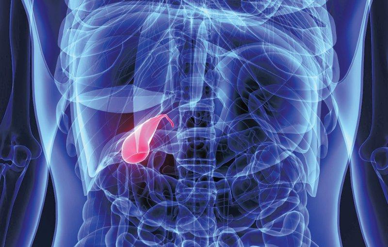 Krebserkrankungen der Gallenblase treten in Südamerika häufiger auf als in Europa. Das Projekt soll Risikofaktoren identifizieren. Foto: PIC4U/stock.adobe.com