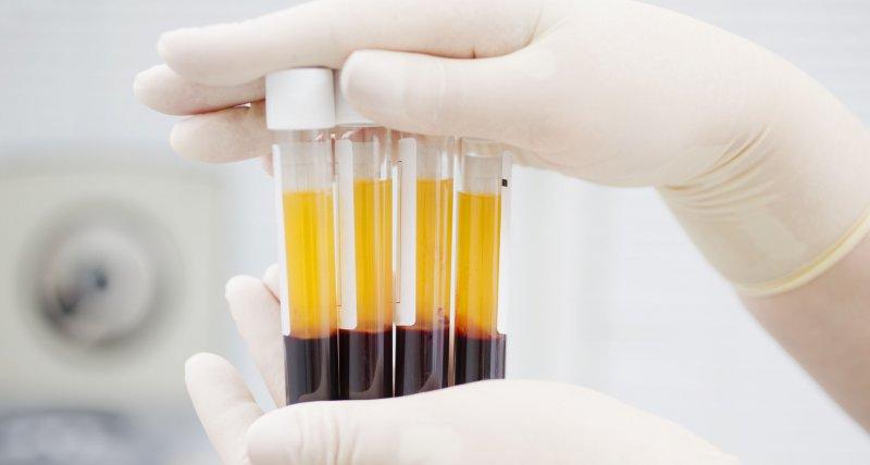 Rekonvaleszentenplasma soll bei schweren COVID-19-Verläufen helfen