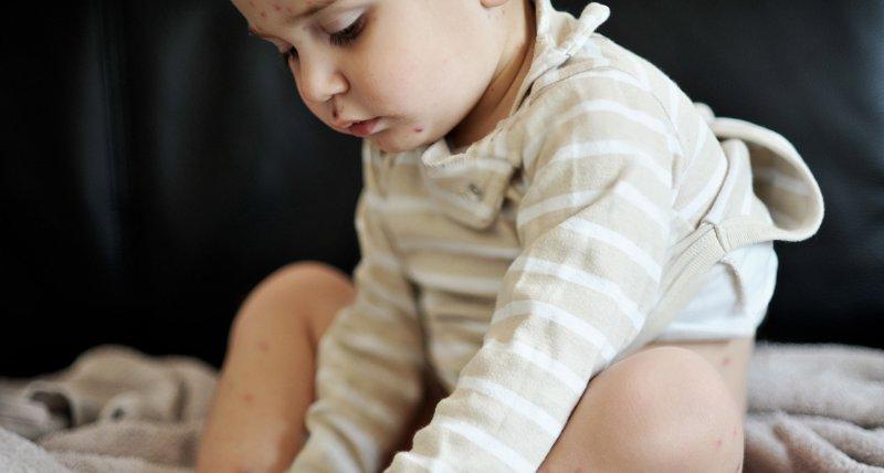 Neurodermitis: Emollienzien schützen in Studien nicht vor Ekzemen