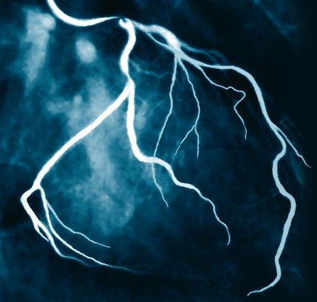 Perkutane Koronarintervention bei stabiler koronarer Herzkrankheit – Ist weniger mehr?