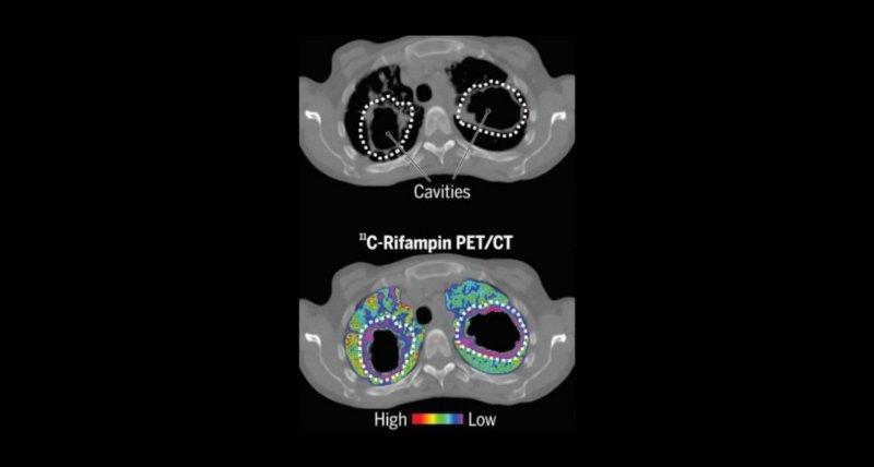 PET/CT zeigt Eindringen von Rifampicin in die Lungenherde bei Tuberkulose