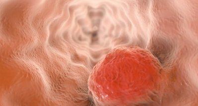 Ösophaguskarzinome: Pembrolizumab plus Chemotherapie neuer Standard für die Erstlinie