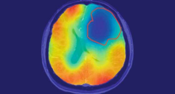 Die rote Linie markiert das Tumorareal; der farbige Kontrast zeigt den Sauerstoff-Stoffwechsel an. Wie vom Warburg-Theorem vorhergesagt, ist der Sauerstoff-Umsatz im Tumor reduziert (blau). /Paech, Radiology