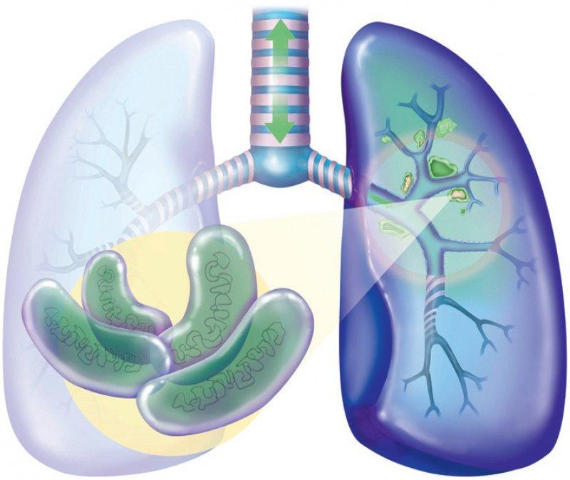 Neue Behandlungen könnten die Therapiedauer bei einer Tuberkulose verkürzen und Arzneimittelresistenzen überwinden helfen. Foto: picture alliance BSIP