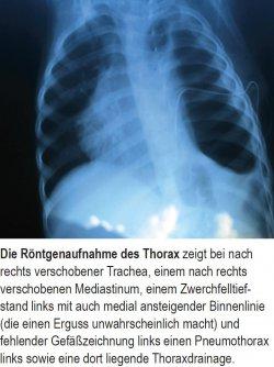 Die Röntgenaufnahme des Thorax zeigt bei nach rechts verschobener Trachea, einem nach rechts verschobenen Mediastinum, einem Zwerchfelltiefstand links mit auch medial ansteigender Binnenlinie (die einen Erguss unwahrscheinlich macht) und fehlender Gefäßzeichnung links einen Pneumothorax links sowie eine dort liegende Thoraxdrainage